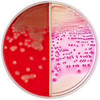 E Coli Symptoms  Food Poisoningcom